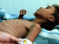 ЮНІСЕФ: десяти мільйонам дітей загрожує голод